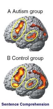 Μαγνητικές Εγκεφάλου ίσως Προβλέπουν Διαταραχές Αυτιστικού Φάσματος